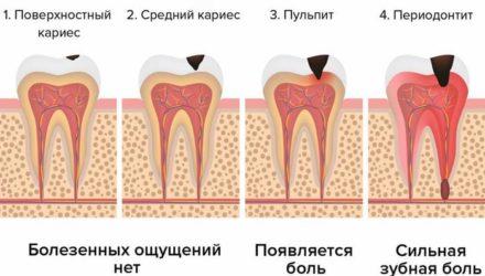Что делать, если болит зуб? 7 эффективных способов борьбы с зубной болью в домашних условиях